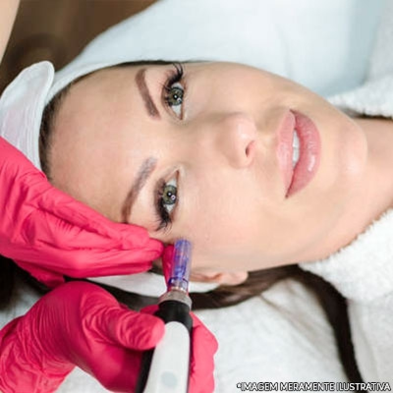 Clínica de Microagulhamento para Acne Santo Amaro - Microagulhamento para Estrias