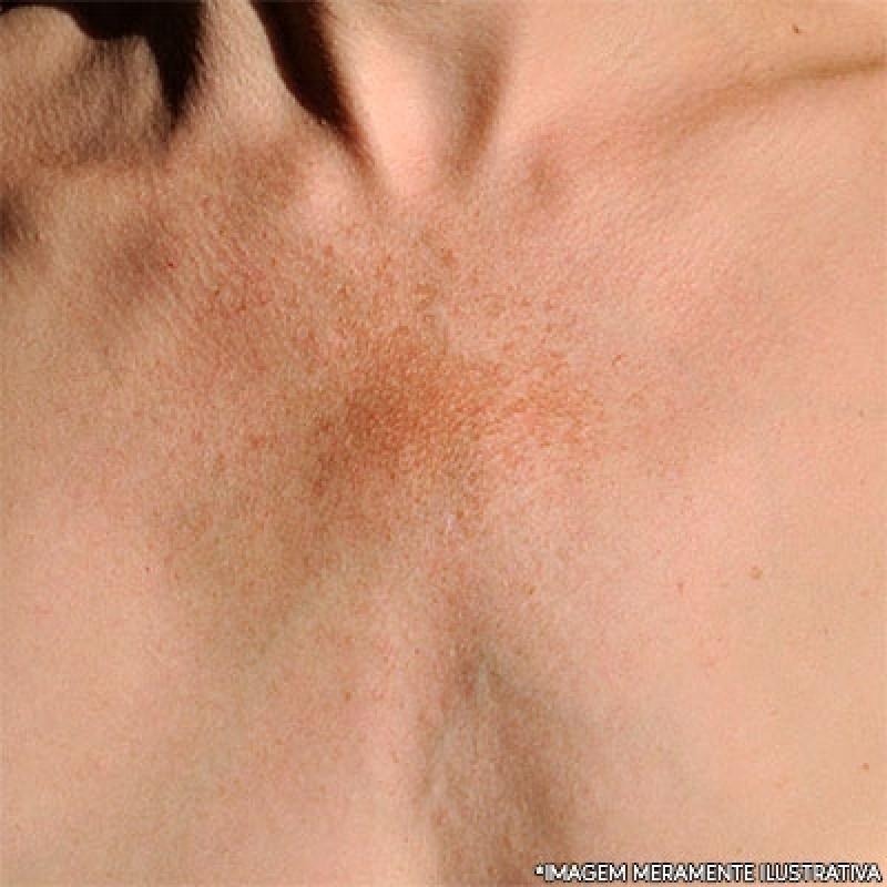 Clínica de Microagulhamento para Melasma Campo Limpo - Microagulhamento no Rosto