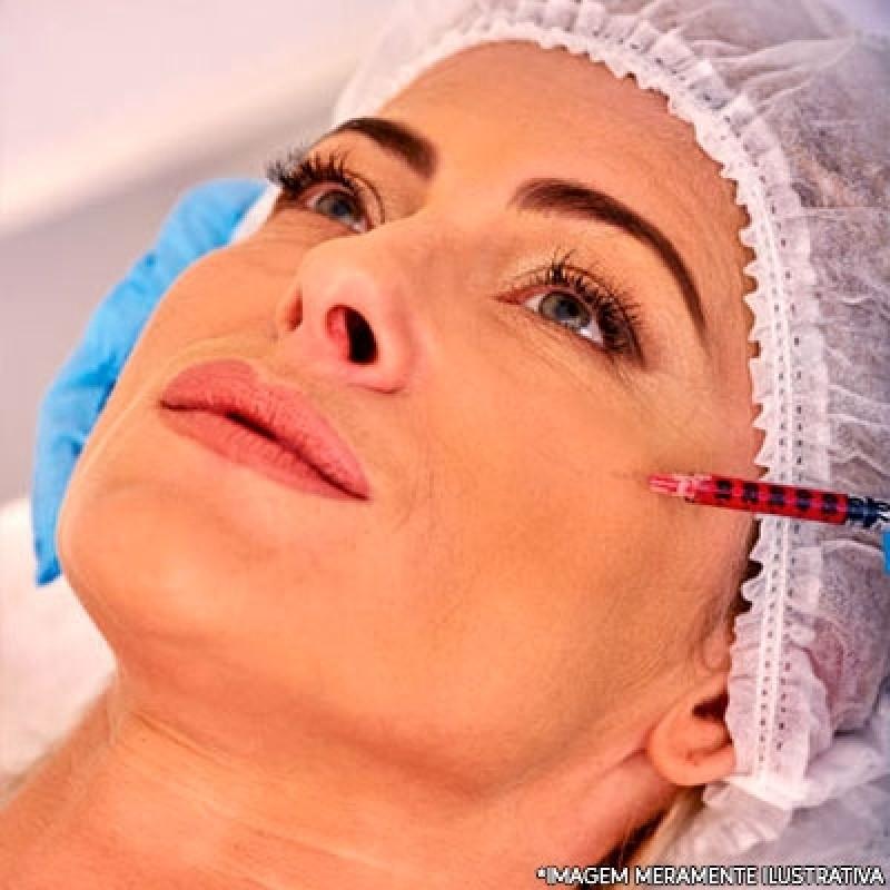 Clínica para Preenchimento Facial Bochecha São Caetano do Sul - Preenchimento Facial ácido Hialurônico