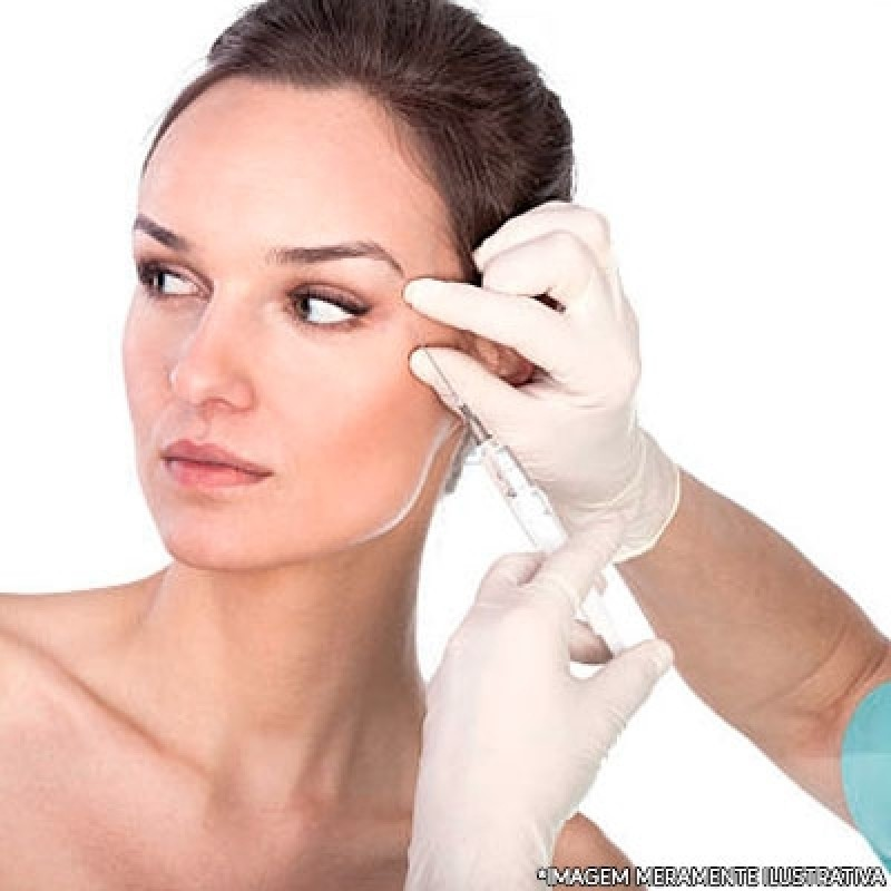 Clínica para Preenchimento Facial com ácido Santo Amaro - Preenchimento Facial Bigode Chinês