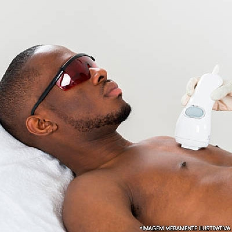 Clínica Que Faz Depilação a Laser Pele Negra Vila Firmiano Pinto - Depilação a Laser no Rosto