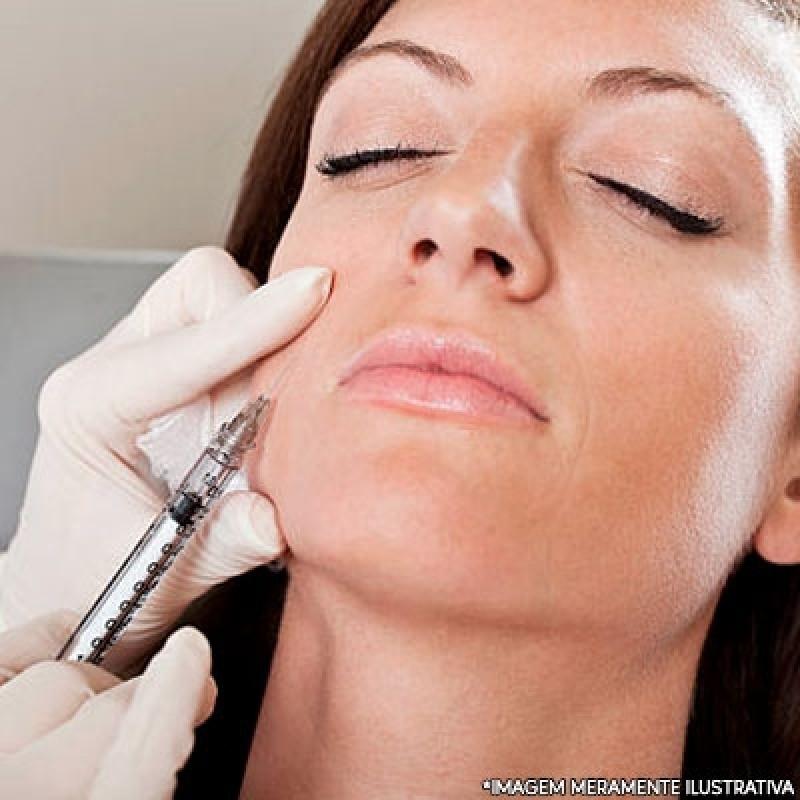 Fazer Preenchimento Facial Bigode Chinês Ipiranga - Botox e Preenchimento Facial