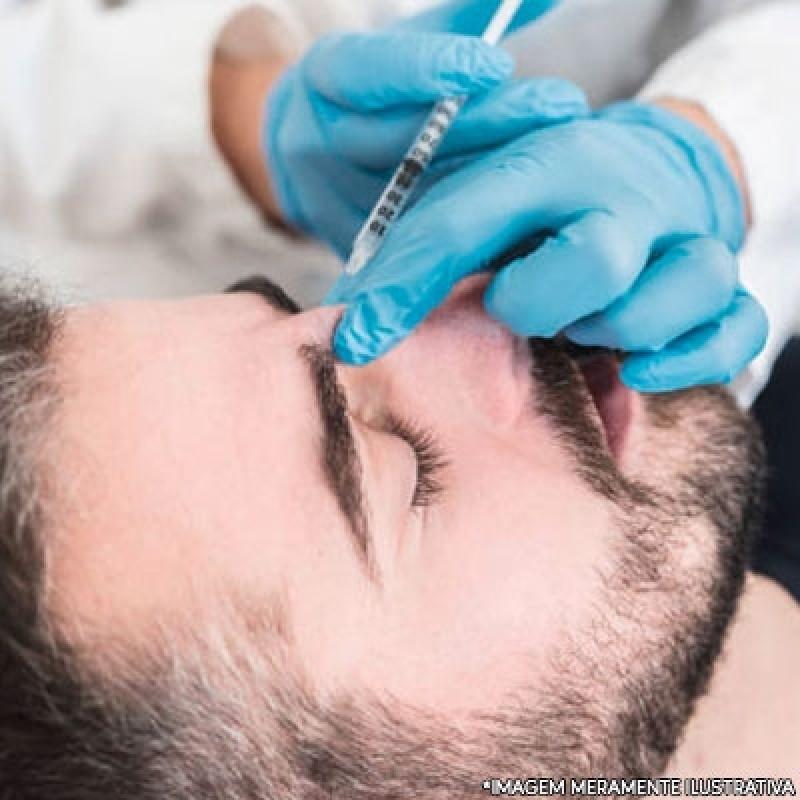 Fazer Preenchimento Facial Masculino Ipiranga - Botox e Preenchimento Facial