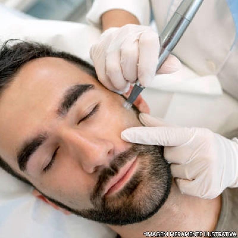 Microagulhamento Facial Agendar Vila Água Funda - Microagulhamento para Rugas