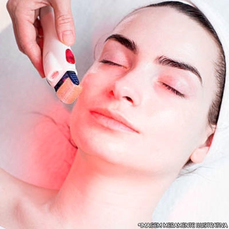 Microagulhamento Facial Jardim Santa Emília - Microagulhamento para Estrias