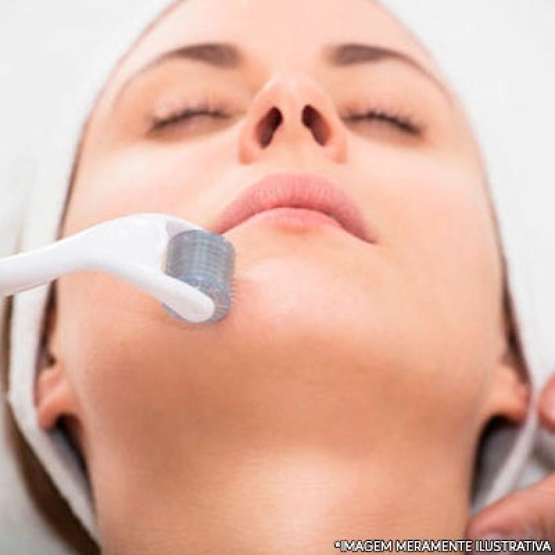 Microagulhamento para Melasma Agendar Morumbi - Microagulhamento Facial