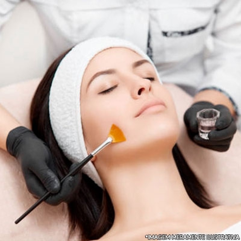 Onde Faz Tratamento de Peeling Vila Água Funda - Peeling para Acne
