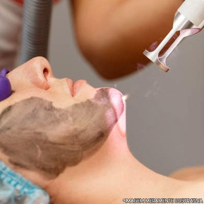 Peeling para Manchas Jardim Marajoara - Peeling Facial