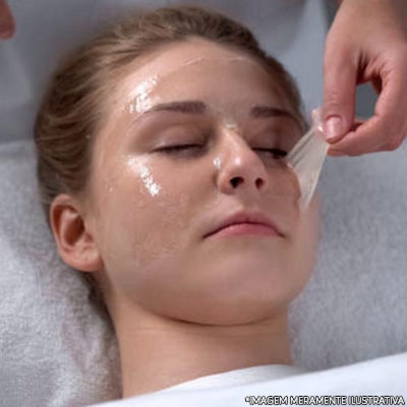 Peelings Profundos São Caetano do Sul - Peeling Facial