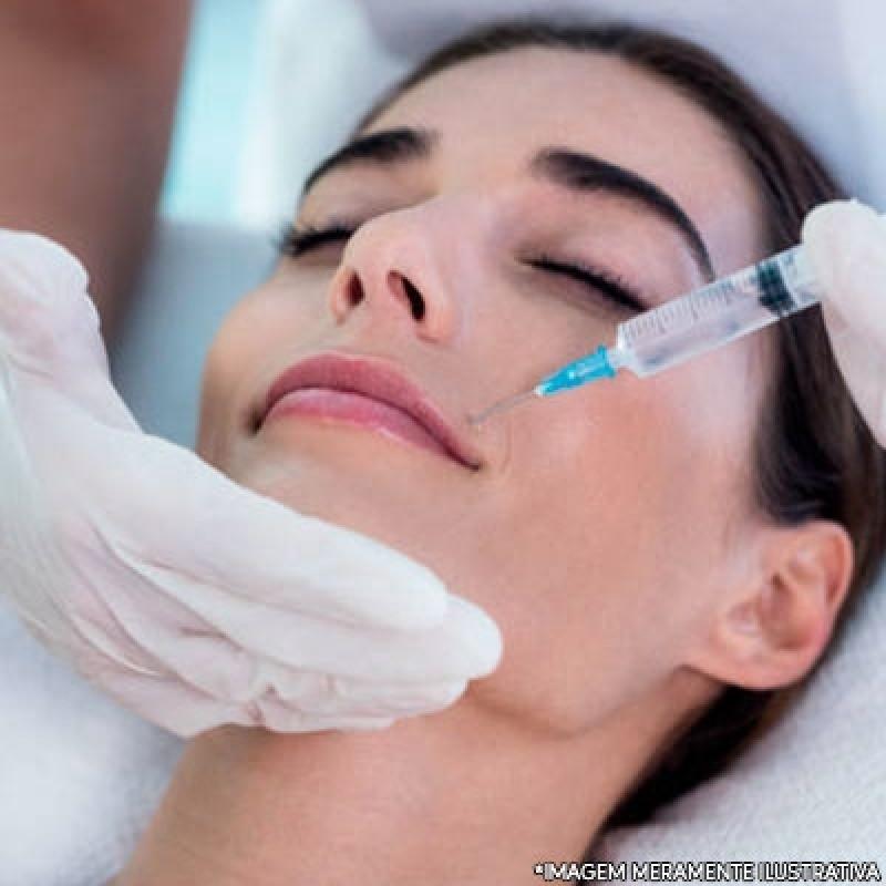 Preenchimento Facial Bigode Chinês Agendar São João Clímaco - Preenchimento Facial Masculino