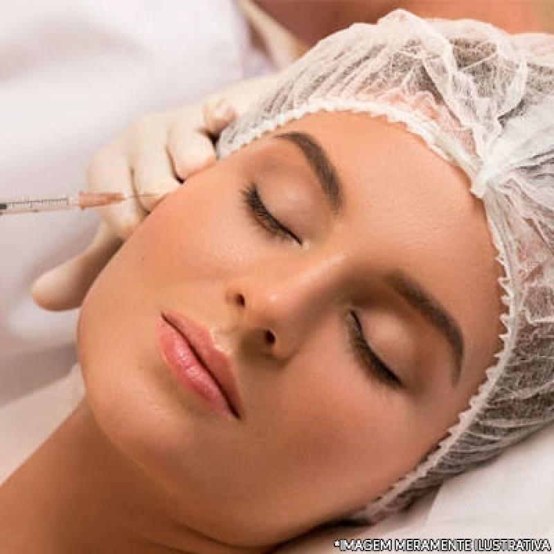 Preenchimento Facial com ácido Hialurônico Vila São José - Preenchimento Facial com ácido Hialurônico