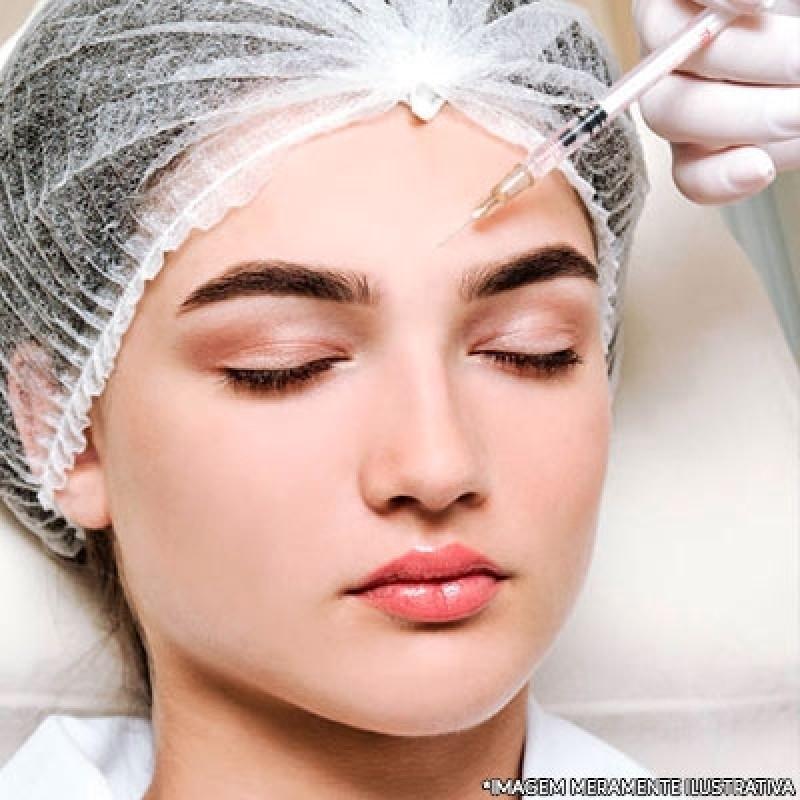 Preenchimentos Faciais ácido Hialurônico Jardim Marajoara - Botox e Preenchimento Facial