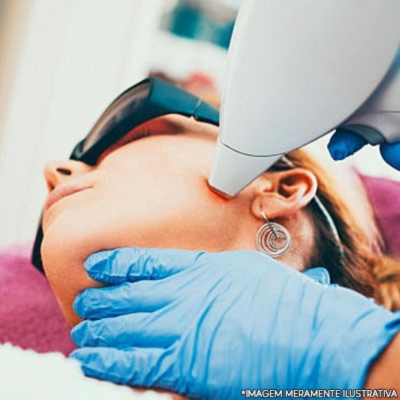 Serviço de Depilação a Laser Rosto Saúde - Depilação Laser Virilha