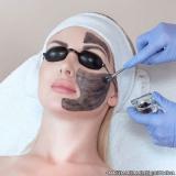 agendamento de peeling para acne Jardim Clímax