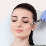 agendamento de tratamento de peeling Interlagos