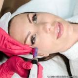 clínica de microagulhamento para acne Jardim Patente Novo