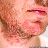 clínica de tratamento de alergia alimentar Saúde