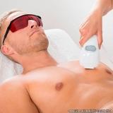 clínica que faz depilação a laser masculina Vila Arapuã