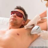 clínica que faz depilação a laser na axila Jardim Seckler