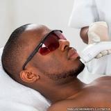depilação a laser pele negra