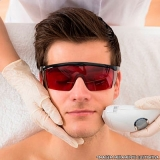 depilação a laser masculina Vila Monumento