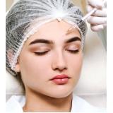 fazer preenchimento facial permanente Campo Belo