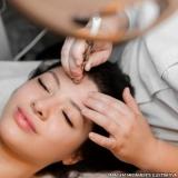 onde fazer microagulhamento para acne Vila Arapuã