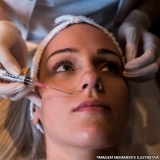 preenchimentos faciais bigode chinês Jardim Patente Novo