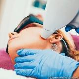 serviço de depilação a laser rosto Vila Carioca