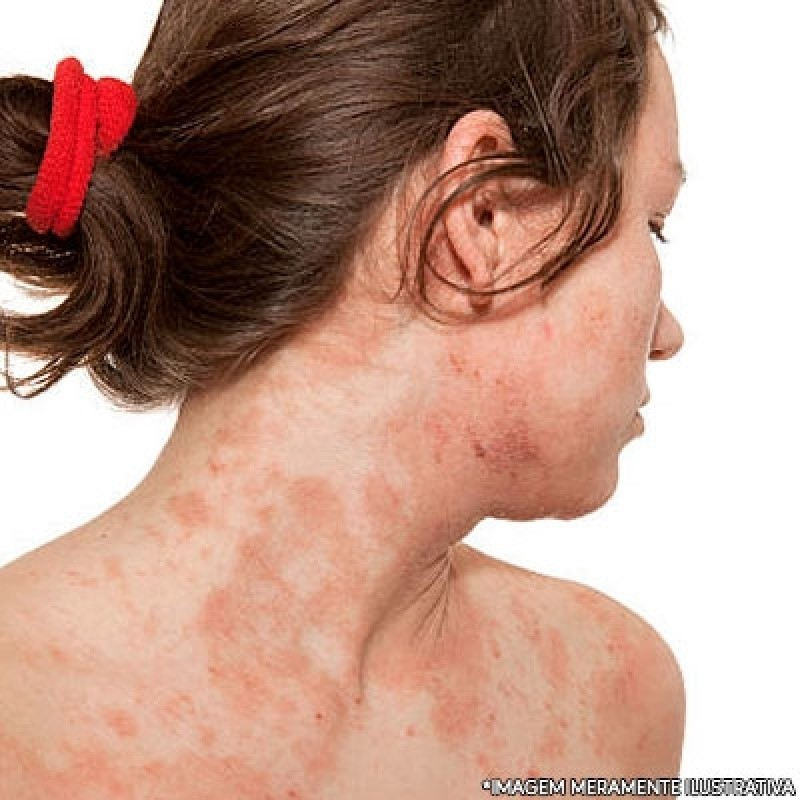 Tratamento de Alergia de Pele Sacomã - Tratamento de Alergia de Pele