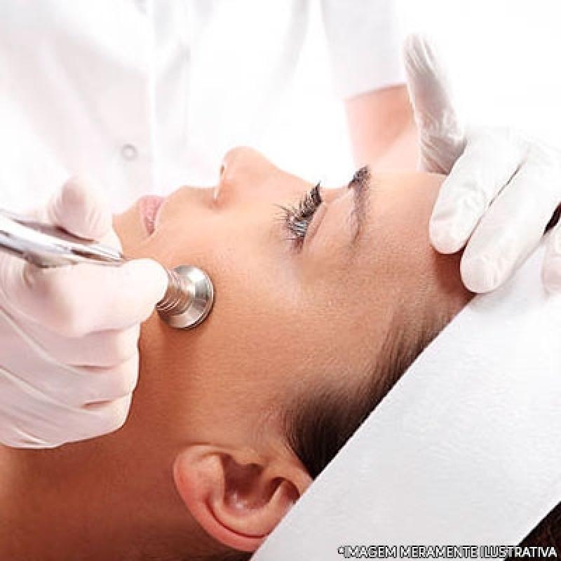 Tratamento de Peeling Jardim Patente Novo - Peeling Facial