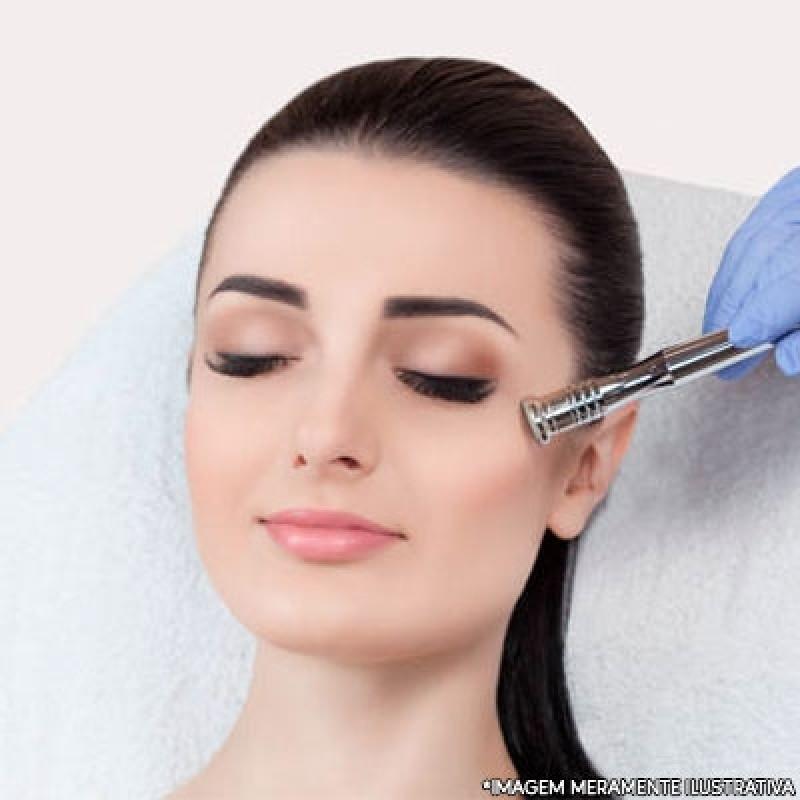 Valor Peeling para Manchas Santo André - Peeling Facial