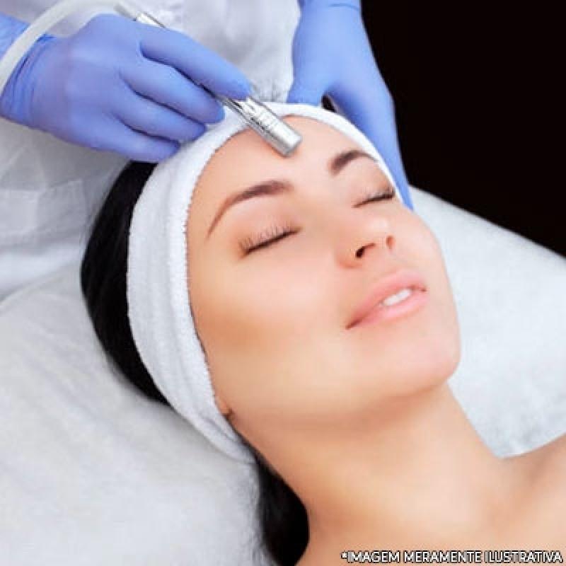 Valor Tratamento de Peeling Cidade Nova Heliópolis - Peeling Facial
